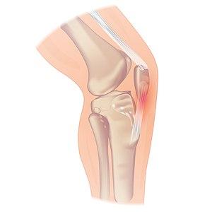 Patellapeestendinitis, jumpers knee, pijn knieschijf, pijn onder de knie