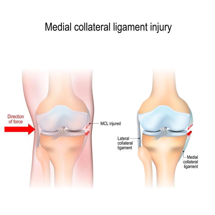 Collateraal band letsel, pijn binnen- en buitenzijde knie
