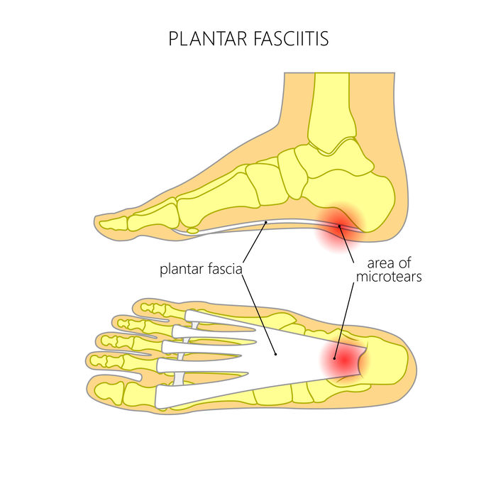 Hielspoor, peesplaatontsteking, Fasciitis plantaris