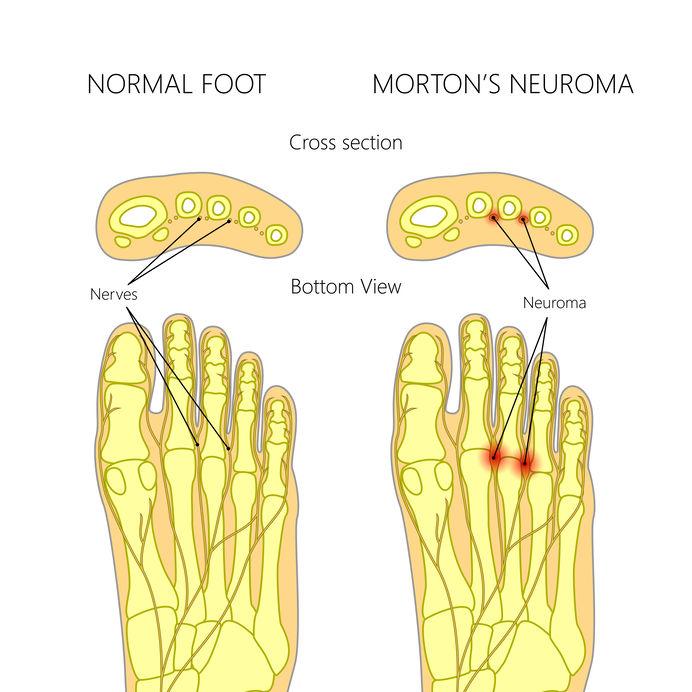 Mortonse neuralgie, voorvoetspijn