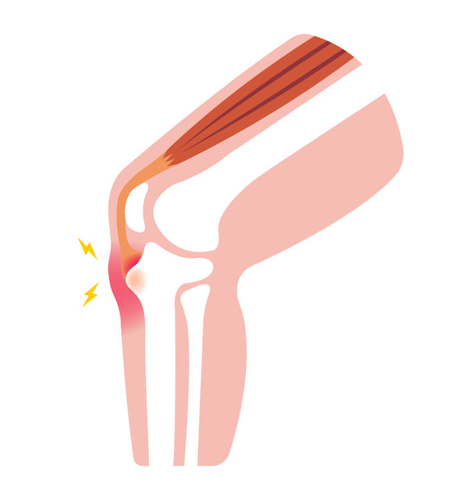 Osgood-schlatter, osteochondrose, groeipijn knie