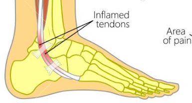 Peroneus pees tendinopathie (ontsteking)