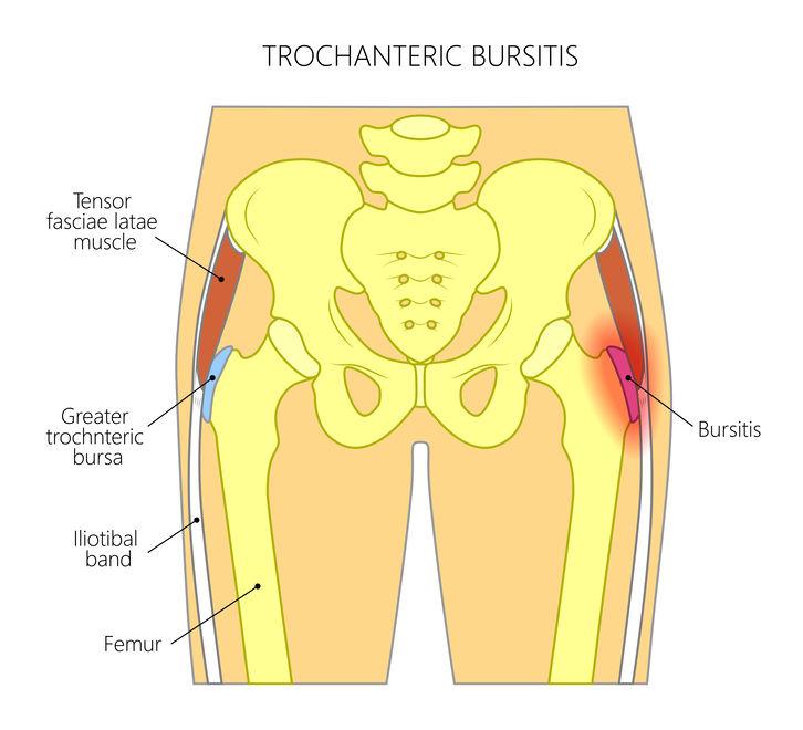 Slijmbeurs trochanter major, pijn buitenzijde heup, slijmbeursontsteking